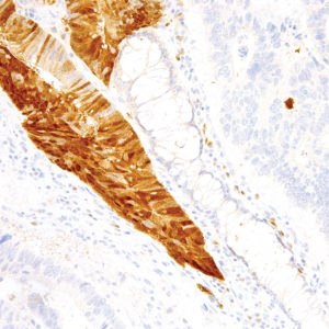 Arginase-1-IHC400-Colon