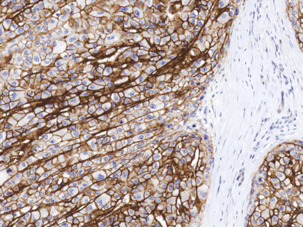 CD138-IHC138-Liver-Cancer
