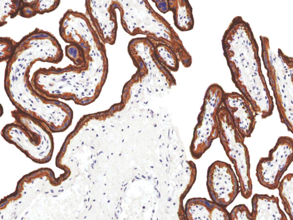 EGFR-IHC565-Placenta