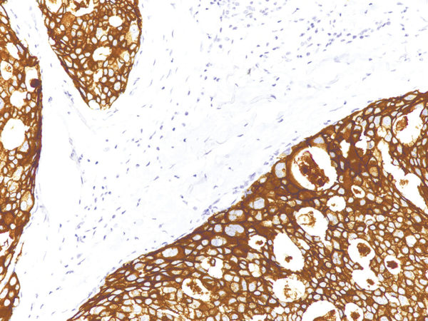 HER2-neu-IHC002-Breast