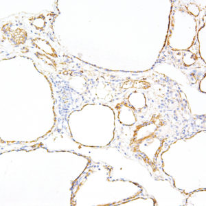 Tau-IHC696-Thyroid-Gland